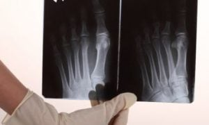 kosti