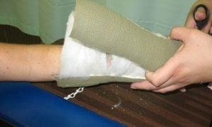 Zlomená ruka