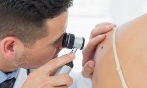 Dermatológ