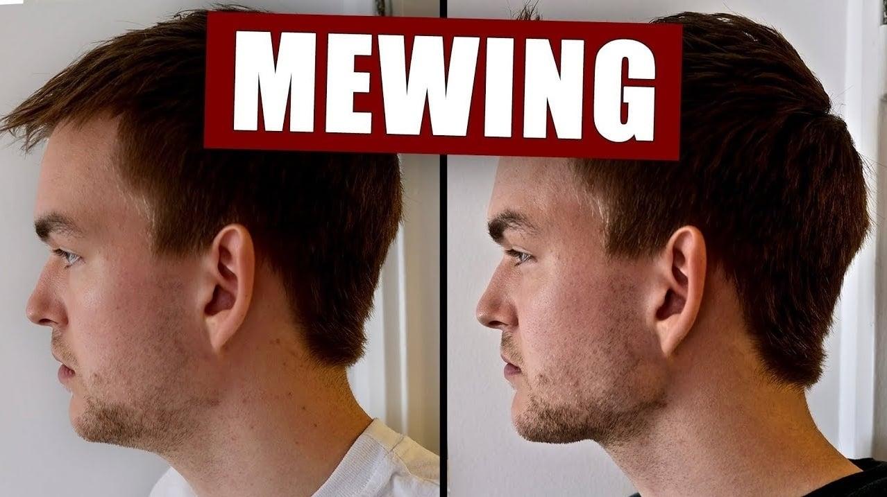 Mewing si vyžaduje trochu cviku a hlavne trpezlivosti.