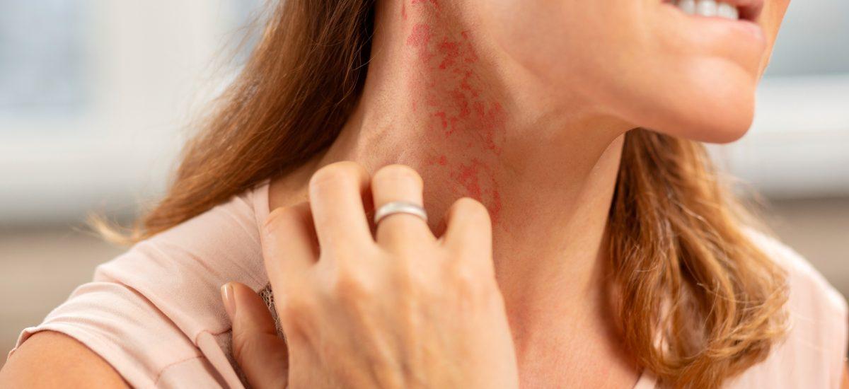 Žena s prsteňom si škriabe vyrážku na krku