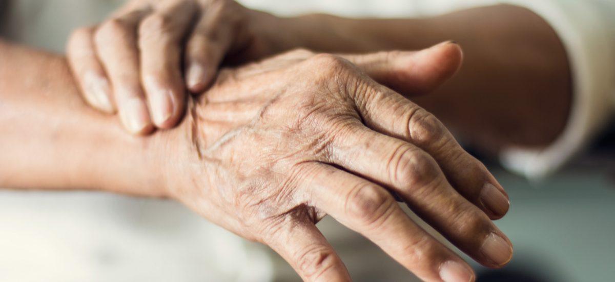 Ako sa starať o suché ruky
